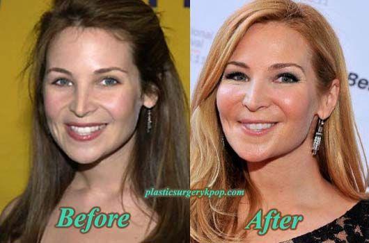 Jennifer Westfeldt Plastic Surgery Celebrity Plastic