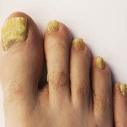 Best Home Remedies For Nail Infection  Natural Treatments & Cure For Nail I #nailinfectiontreatment