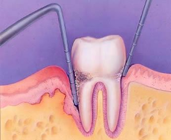 About Different Periodontal Conditions in Human