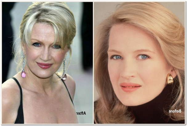 Diane Sawyer Plastic Surgery Before & After