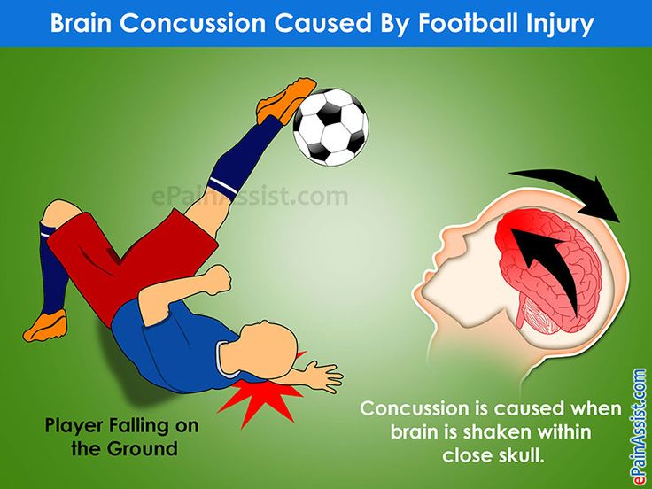 Brain Concussion Caused By Football Injury