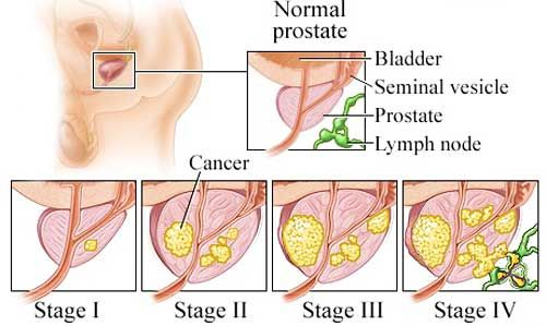 Prostate Cancer Metastasis - Health, Medicine and Anatomy Reference Pictures