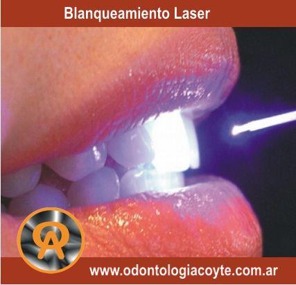 Centro Odontologico Acoyte -Implantes, Odonto-Pediatria, Blanqueamiento Dental Laser, protesis.Av.Acoyte 565 - Barrio Caballito - Capital Federal - Buenos Aires.   http://www.odontologiacoyte.com.ar - - 011-4958-1754