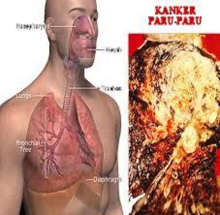 """3 Penyebab Bisa Sakit Kanker Paru Walau pun Bukan Perokok Aktif  KONFRONTASI -  Kanker paru memang identik dengan penggunaan tembakau namun sekitar 20 persen orang yang meninggal karena kanker paru tidak pernah merokok atau produk tembakau lainnya. Berita Lainnya: """"Kena Kanker Paru-paru Suhardi Bukan Perokok"""" Berikut adalah tiga penyebab mengapa seseorang bisa menderita kanker paru walau tidak pernah menghisap rokok satu batang pun. 1. Lingkungan Faktor lingkungan berperan besar dalam faktor…"""