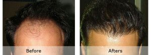 Hair Transplant cost in Pakistan