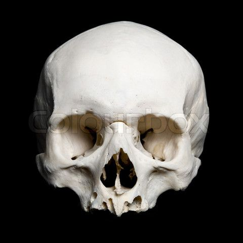 Stock image of 'Upper half of the real human Skull'