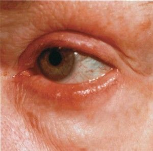 Ocular Rosacea - learn about the symptoms, diagnosis and treatments for this eye... form of rosacea at Rosadyn.