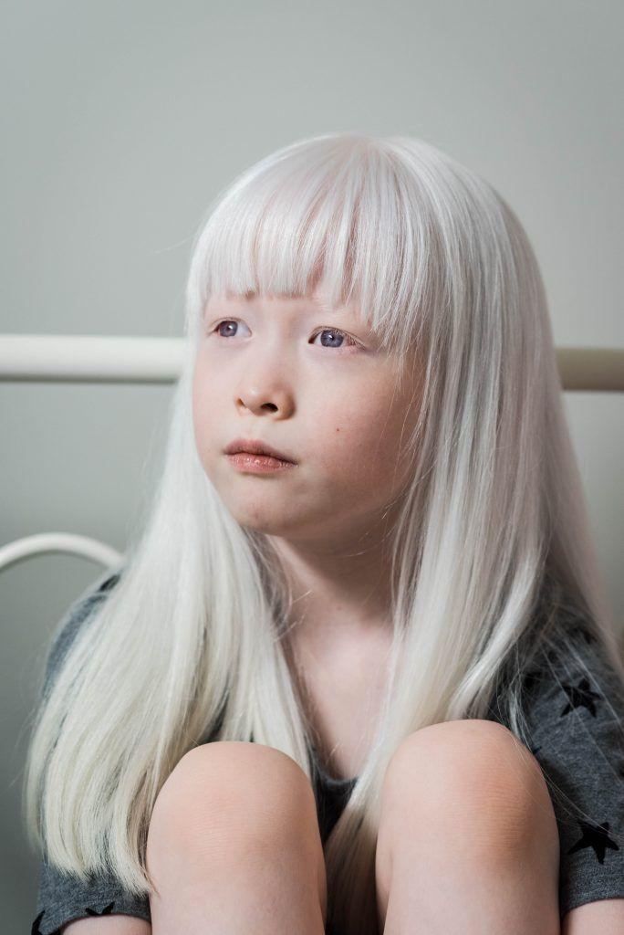как его азиаты альбиносы фото посетители музея мрачными