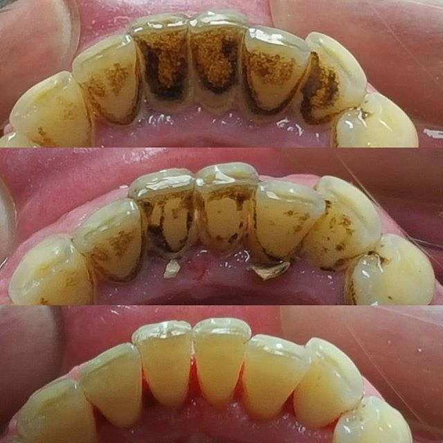 Сегодняшний клинический случай. Наша гигиенист, Мария Владимировна творит чудеса ;) _________ Что такое зубной камень? Это миллиарды бактерий, которые, как снежный наст, образуют плотную структуру. Эти бактерии выделяют токсины, вызывая воспаление десны и развитие проблем в околозубных тканях. С годами происходит оголение корней, появляется подвижность зубов. В ряде случаев сохранить такие зубы невозможно. Требуется их удаление, имплантация и протезирование. ________ Друзья! Не доводите…