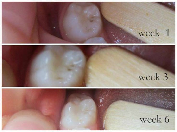 A series of photos showing the healing of cavities at week 1, week 3, and week 6. dental remineralization