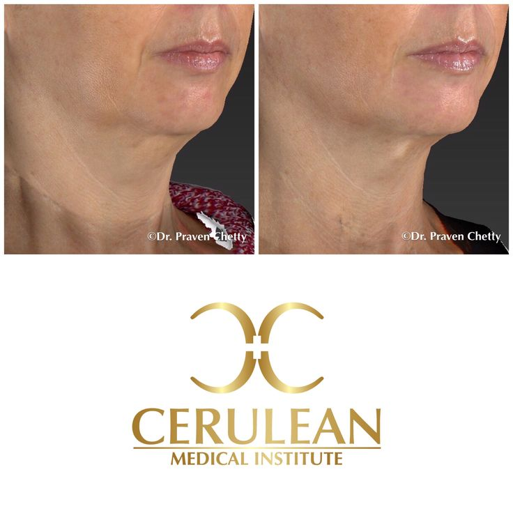 Belkyra before and after photo illustrating dual effect of reduction of fullness under the chin as well as enhancement of the jawline✨ #Belkyra #BeforeAndAfter #Submental #Chin #Youthful #Jawline  #NonSurgical #Cosmetic #Dermatology #Facial #Sculpting #Contouring #CeruleanMedicalInstitute #DrPravenChetty #RealSelf #TopDoctor #Beautiful #Kelowna #Okanagan