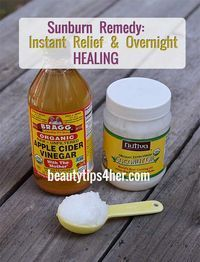 Heal Sunburn Overnight with Two Simple Ingredients