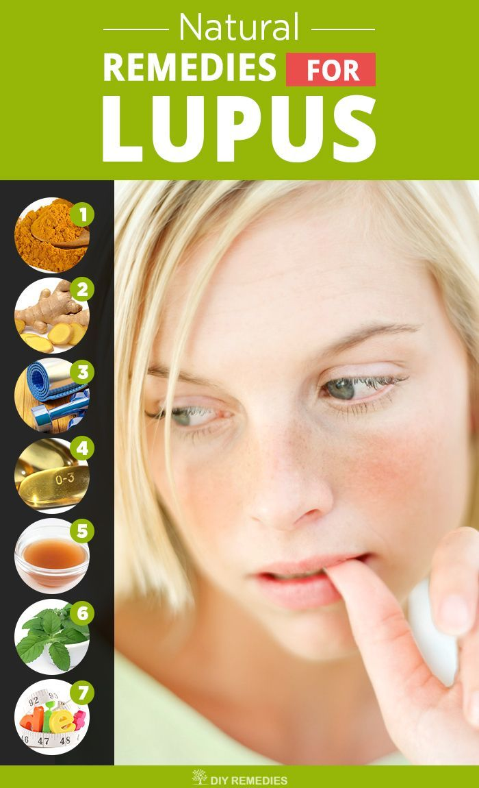 Natural Remedies For Lupus There Is No Exact Cause For This Lupus
