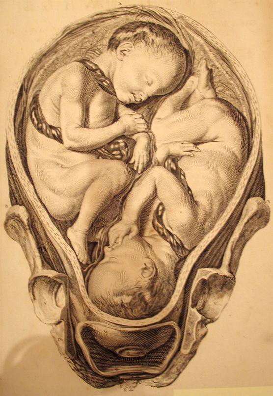 William Hunter, The Gravid Uterus, 1774. Twins in utero.