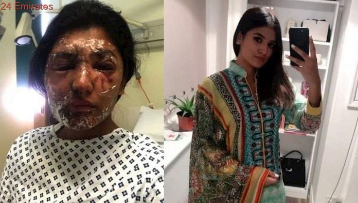 Acid attack victim posts beautiful Eid picture after recovery