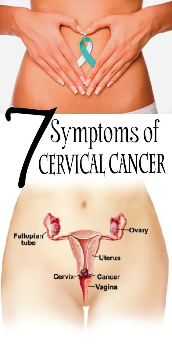 7 Cervical cancer signs and symptoms you should never ignore.