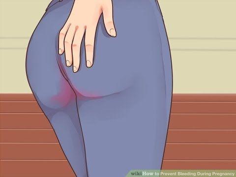 Bleeding Between Periods - Causes of Bleeding in Between Periods - Between Periods Bleeding #bleeding https://youtu.be/giFOBHiyEFo