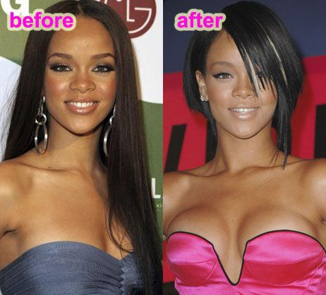 Rihanna - plastic surgery boobs & nose perhaps??