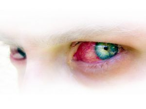 Pink Eye   Conjunctivitis   Herbal Remedies for Red Itchy Eyes