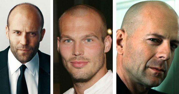 96% av alla män drabbas någon gång av manligt håravfall