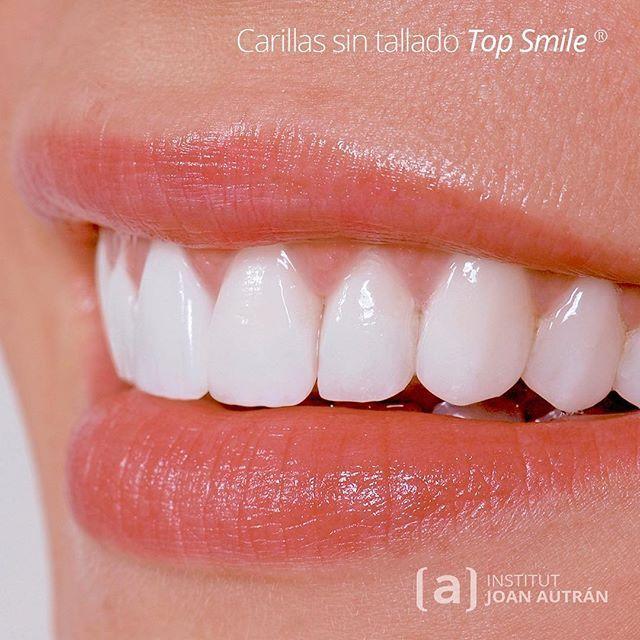 Insistimos Devoción Por La Naturalidad Carillas Sin Tallado Top Smile Institutautran Autran Perfect Teeth Dental Reconstruction Dental