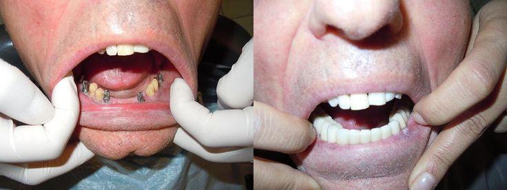 Les implants dentaires, sont des racines artificielles qui permettent de remplacer les racines dentaires perdues.   Tarifs Implant dentaire complet (implant+pilier+couronne) : 800€  http://www.sunesthetique.com/