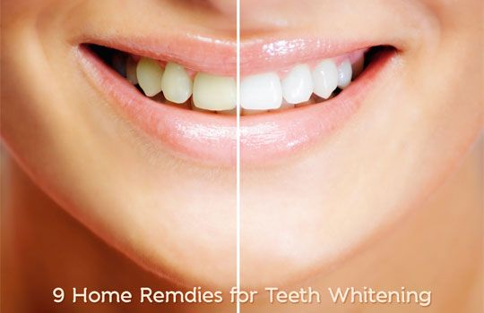 9 Home Remedies to Get White Teeth Overnight Get whiter teeth ! Imeditate results in the first 25 minutes ! ALL FOR FREE