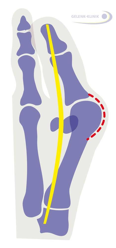 Fig. 5: Hallux valgus: The tendon of the big toe runs at an angle to the metatarsophalangeal joint. The sesamoid bones which guide the toe flexor tendon are no longer to the right and left of the big toe but have noticeably shifted. The toe rotates out of the metatarsophalangeal joint, just like a bow is increasingly strained by the string. © Gelenk-Klinik.de