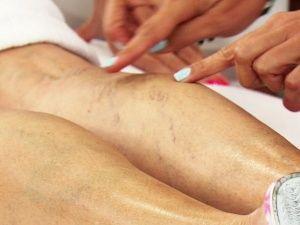 5 remedios caseros para eliminar las varices o arañitas en las piernas: - Megalindas