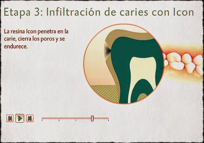 Resinas Icon: ¿Nueva cura de caries? Sin anestesia y sin taladro | OVI Dental