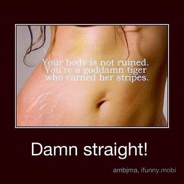 Imperfections are what make us beautiful and unique ;): Positive Outlook, Worth Remembering, Mommy Girl, Quotes, Flat Tummy, Mommys Girl, Ho Yeah, Pretty Awesome