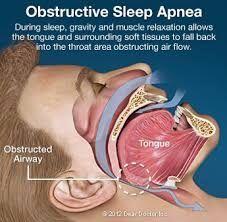 Dr. Dean Salo offers consultation and treatment for sleep apnea Los Angeles.