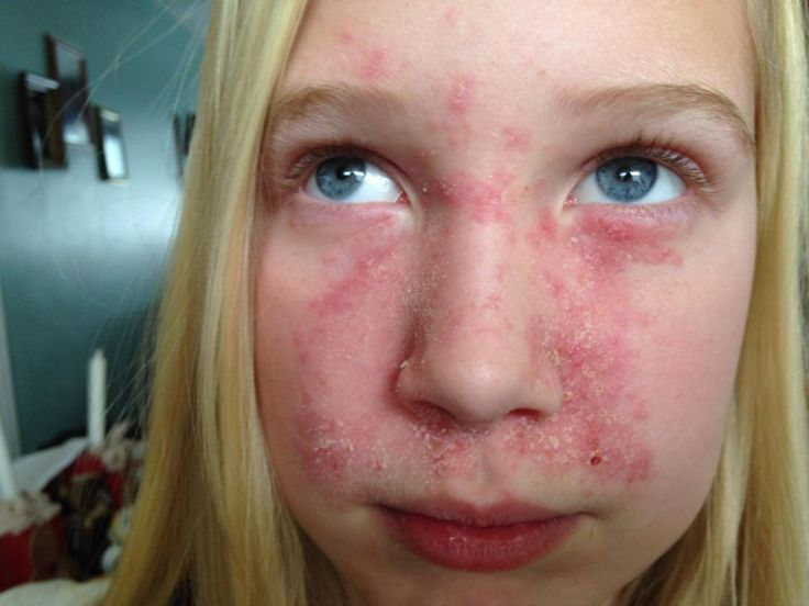 Gracie S Progression With Seborrheic Dermatitis Flakes