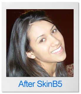 """www.skinb5.com """"I purchased the extra strength time release tablets a month ago. My results have been impressive! I have battled with inflamed acne, whiteheads, black heads and oil skin for 10 years. My skin just..."""