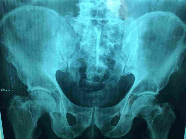 Sinar X Ray digunakan pertama kalinya 22 Desember 1895. Melakukan penelitian pada sinar katoda, Wilhelm Röntgen membawa sebuah X-ray di sisi istrinya.