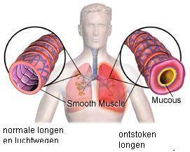 Acute bronchitis | gezondheid.be