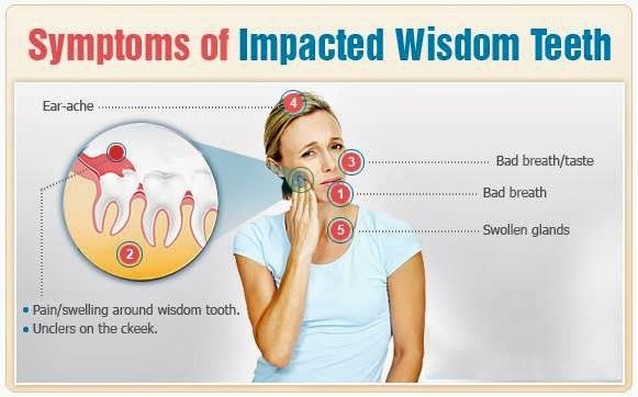 Symptoms of Impacted Wisdom Teeth: Ear ache, Bad breath, bad taste, swollen glands, pain and or swelling around wisdom teeth. Arden House Dentist