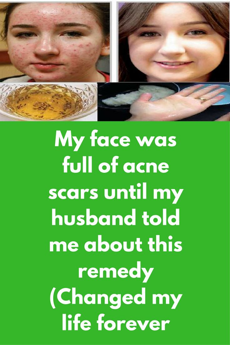 My face was full of acne scars until my husband told me about this remedy (Changed my life forever When I reached puberty, acne was regular problem for me and slowly I accepted this as a part of my life. No treatment worked for me. I went to many parlous, tried many expensive creams too but all waste of money. But after my marriage in just few days my life changed completely. My husband …