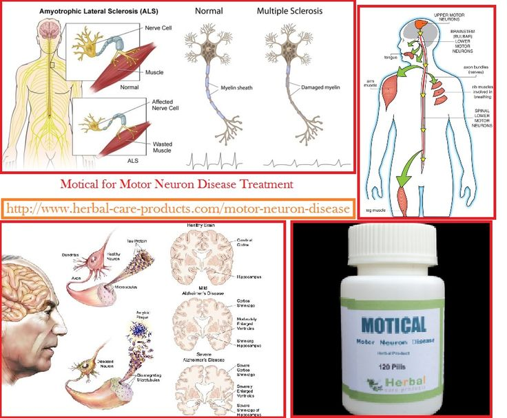 Information about Motor Neuron Disease Treatment with Herbal Products and Symptoms, Causes by Herbal Care Products. Motor Neuron Disease Mind Happend Motor neuron disease that more often than not o…