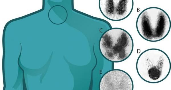 The last 40 years have shown triple the incidence of thyroid cancer in women, yet the mortality rate has remained the same.  Why are physicians so quick to diagnose women with thyroid cancer?
