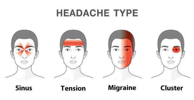 Headache is the most common form of pain. It's one of the main reason people miss days at work or school or visit the doctor. Some people h...