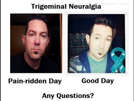 Type II Trigeminal Neuralgia - Breaking the silence and making the invisible visible.