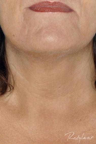 ETTER: Med Restylane får halsen mer glød og spenst, og passer til et velpleid ansikt.