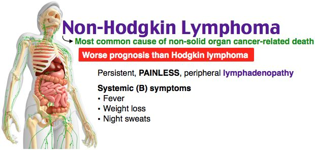 a study of non hodgkins lymphoma Non-hodgkin lymphoma (nhl) consists of a diverse group of malignant neoplasms variously derived from b cell progenitors, t cell progenitors, mature b cells, mature t cells, or (rarely) natural killer cells this topic will review the initial evaluation of a patient with suspected nhl the.