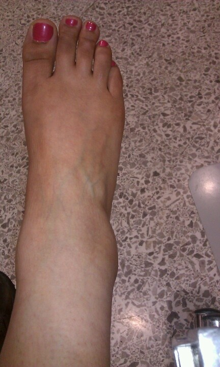 72 best swollen ankles images on pinterest | swollen ankles, ankle, Skeleton