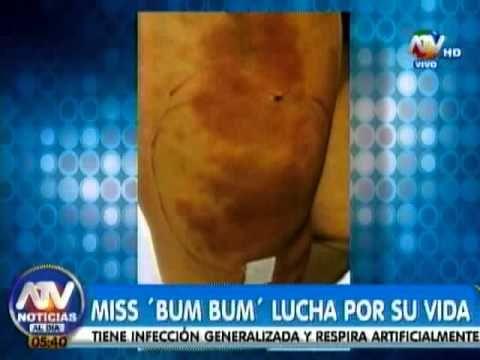 Reina de belleza brasileña en estado grave por tratamiento estético