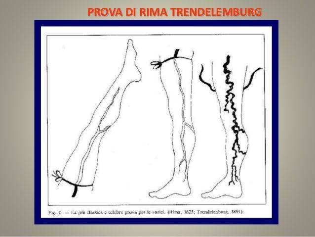 Lamanovra di Trendelemburgvaluta la continenza dell'ostio safeno; il paziente solleva l'arto inferiore a 45° (con delle vene che divengono collabite) e gli viene applicato un laccio emostatico alla radice della coscia, comprimendo pertanto i vasi superficiali; il paziente poi si mette in ortostasi e si toglie successivamente il laccio: se le valvole sono insufficienti le vene tendono a riempirsi rapidamente dall'alto verso il basso