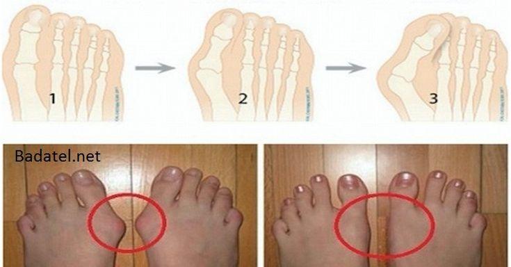 Haluxy jsou kostní bulky, které se formují na kloubech, obvykle na velkých palcům. Vznikají tehdy, když váš palec tlačí na další prst, což nutí kloub palce vybočit do strany. Kromě samotných kloubech je často postižena i přilehlá pokožka, která může být zarudlá a boľavá.' 1. Domácí sirup z bobkového listu Každý večer do hrnce vložte …