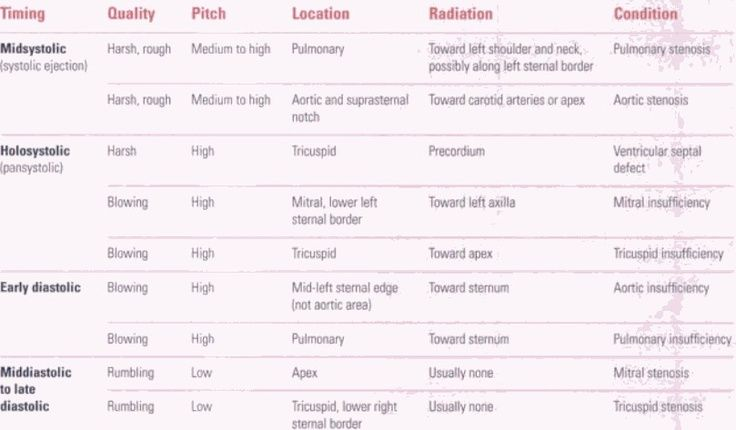 heart murmurs table for usmle in pinterest - Google Search