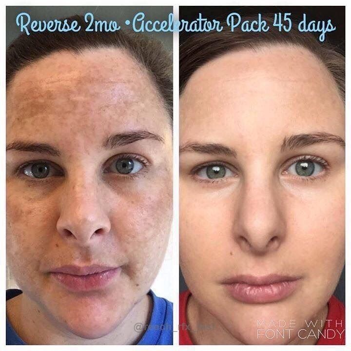Can you relate to the 'before' picture? Would you prefer to look  like the 'after' photo? . Yes of course you would! She's flawless and has the RodanFields glow  . REVERSE Regimen works  . Go to my website and have a look around.  Each and every product will amaze you and the best part is ...... THEY WORK  http://rcampbell10.myrandf.com/au . Does your current skincare actually give you the amazing results they promised and you desperately hoped forMost do little or nothing but you (I mean WE…